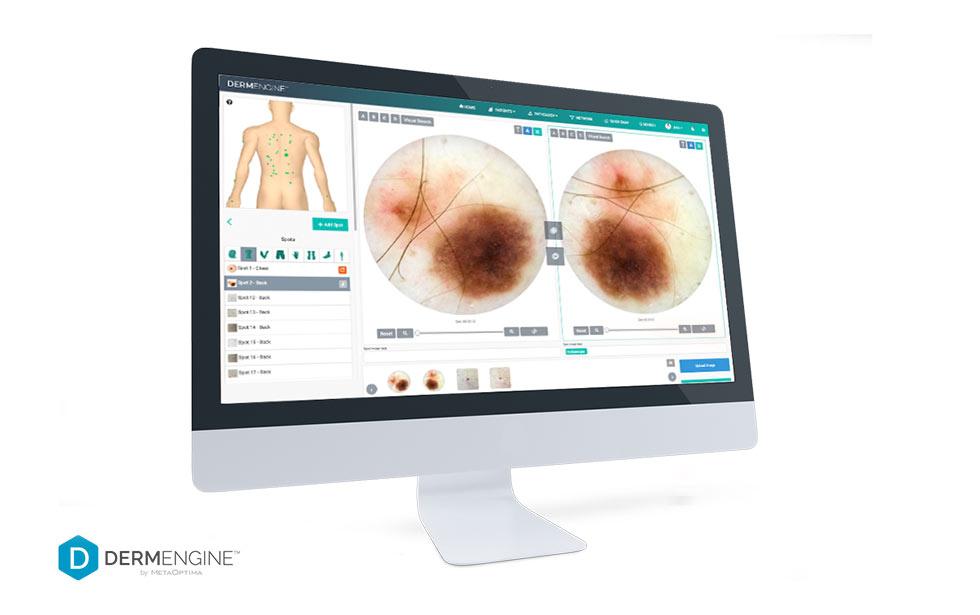 skin-screen-clinic-derm-engine-2